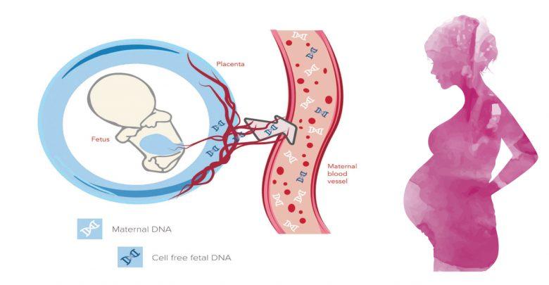 مروری بر تست Cell free fetal DNA و یا تست غیر تهاجمی پیش از تولد (NIPT)