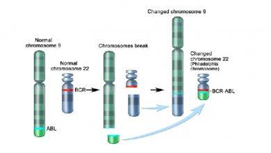 Photo of آزمایش شناسایی بازآرایی BCR-ABL (کروموزوم فیلادلفیا)