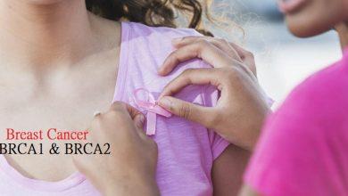 Photo of بررسی جهش ژن های BRCA1 و BRCA2 با روش های NGS و MLPA