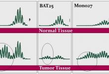 Photo of آزمایش بررسی ناپایداری میکروساتلایت (MSI)